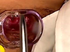 cervix  Insertion stick play